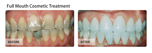 full-mouth-cosmetic-treatment